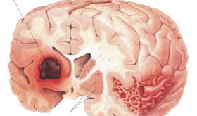 Что важно знать об инсульте?