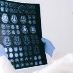 Дефицит когнитивных способностей обнаружили даже у тех, кто перенёс CОVID-19 в лёгкой форме