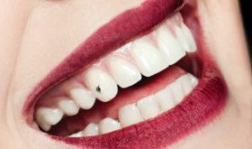 Хорошо забытое старое: украшения для зубов