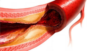 Поиски молекулы, останавливающей воспаление кровеносных сосудов