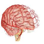 Последствия нарушений кровообращения в головном мозге