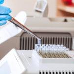 Сроки готовности ПЦР-теста изменены